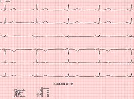 Lab-quality ECG.png