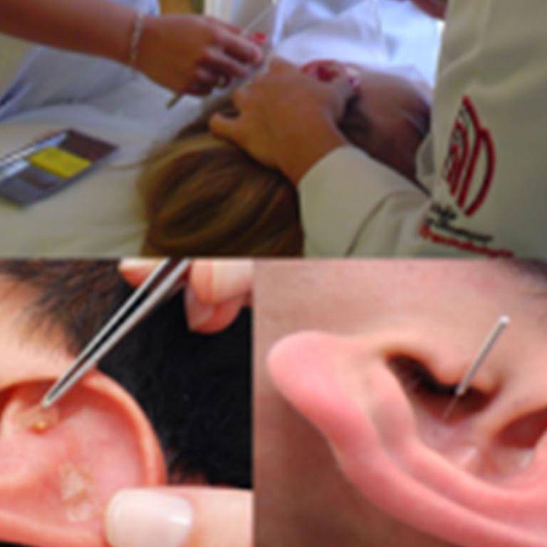 Curso de Auriculoterapia Chinesa