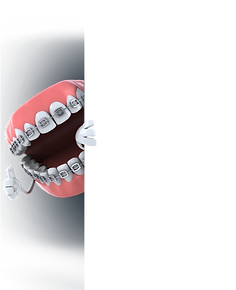 Braces-Teeth-Graphic.png