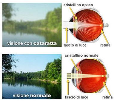 cataratta-sintomi.jpg
