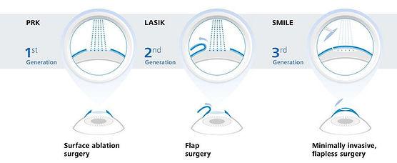 3-generation-of-laser-eye-surgery-1024x4