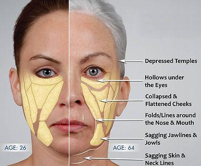 DrDirk RPAesthetics Facial Ageing.jpg