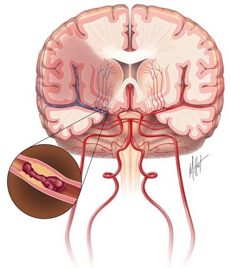AVC isquêmico embólico (infarto cerebral)