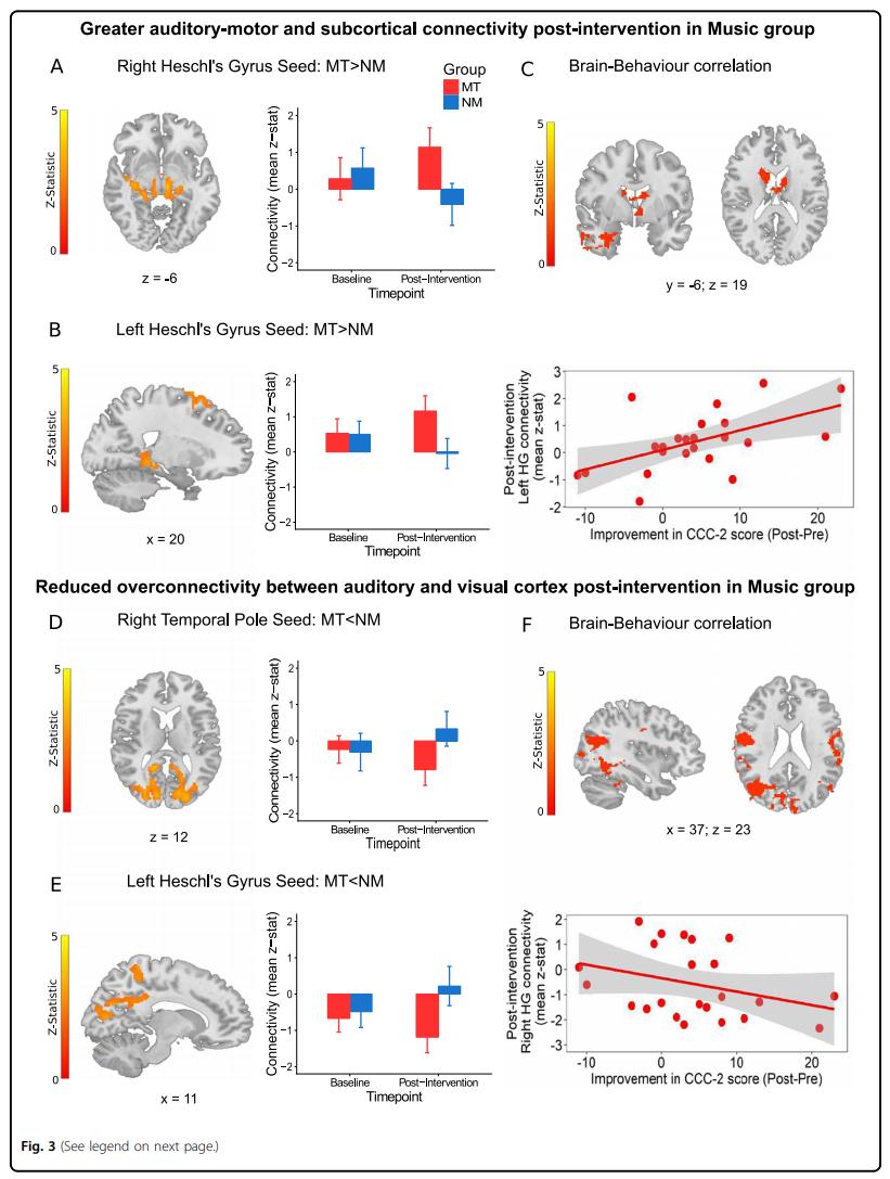 Esquema que mostra melhora da conectividade funcional de áreas cerebrais e melhora comportamental