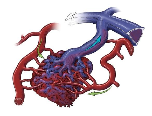 Malformação arteriovenosa (MAV), uma alteração que ja pode estar presente ao nascimento e causar sintomas só mais tarde