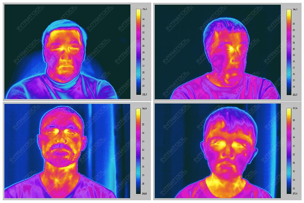 Рис. 2-5. Термограммы лица человека