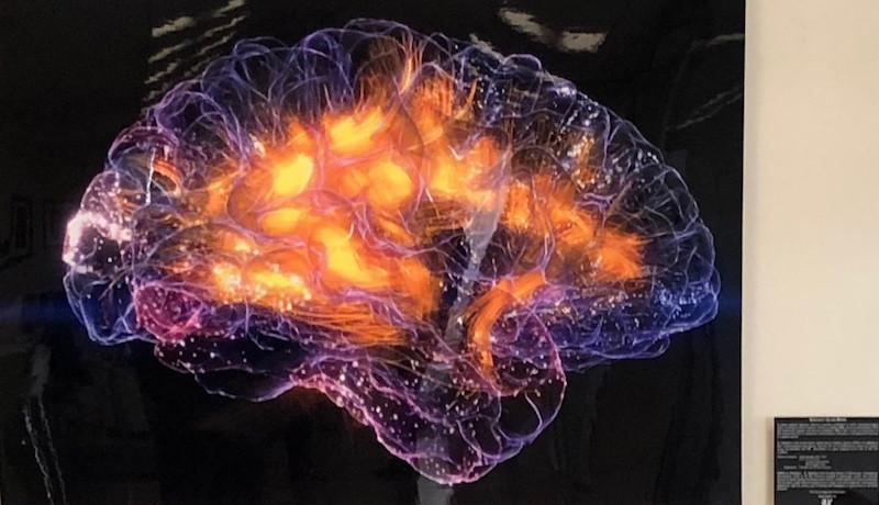 Your Brain on Niagen