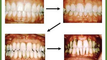 Click on the image to read a new article, about more evidence of the link between advanced gum disea