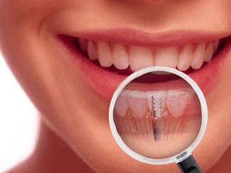 How to Ensure Your Implant Lasts