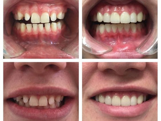 Interested in Veneers? Call Our Office To Schedule a Consult!