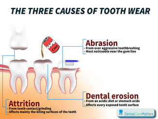 """What is """"Tooth Wear?"""""""