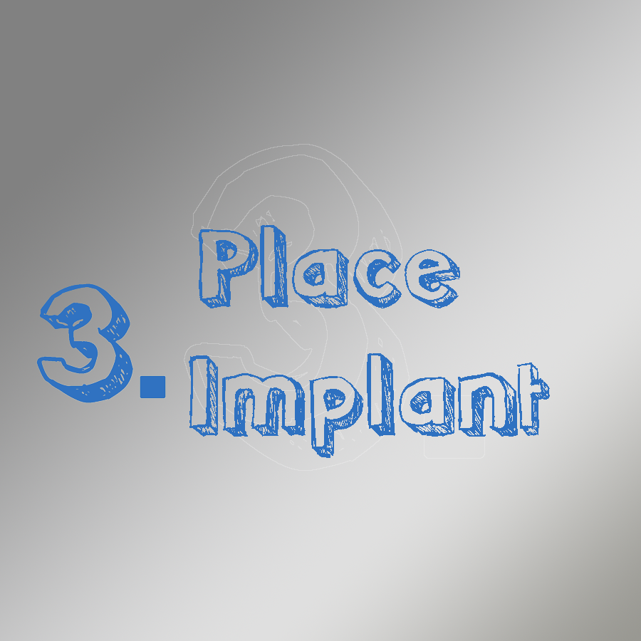 Step 3 Place Implant Surgical Guided