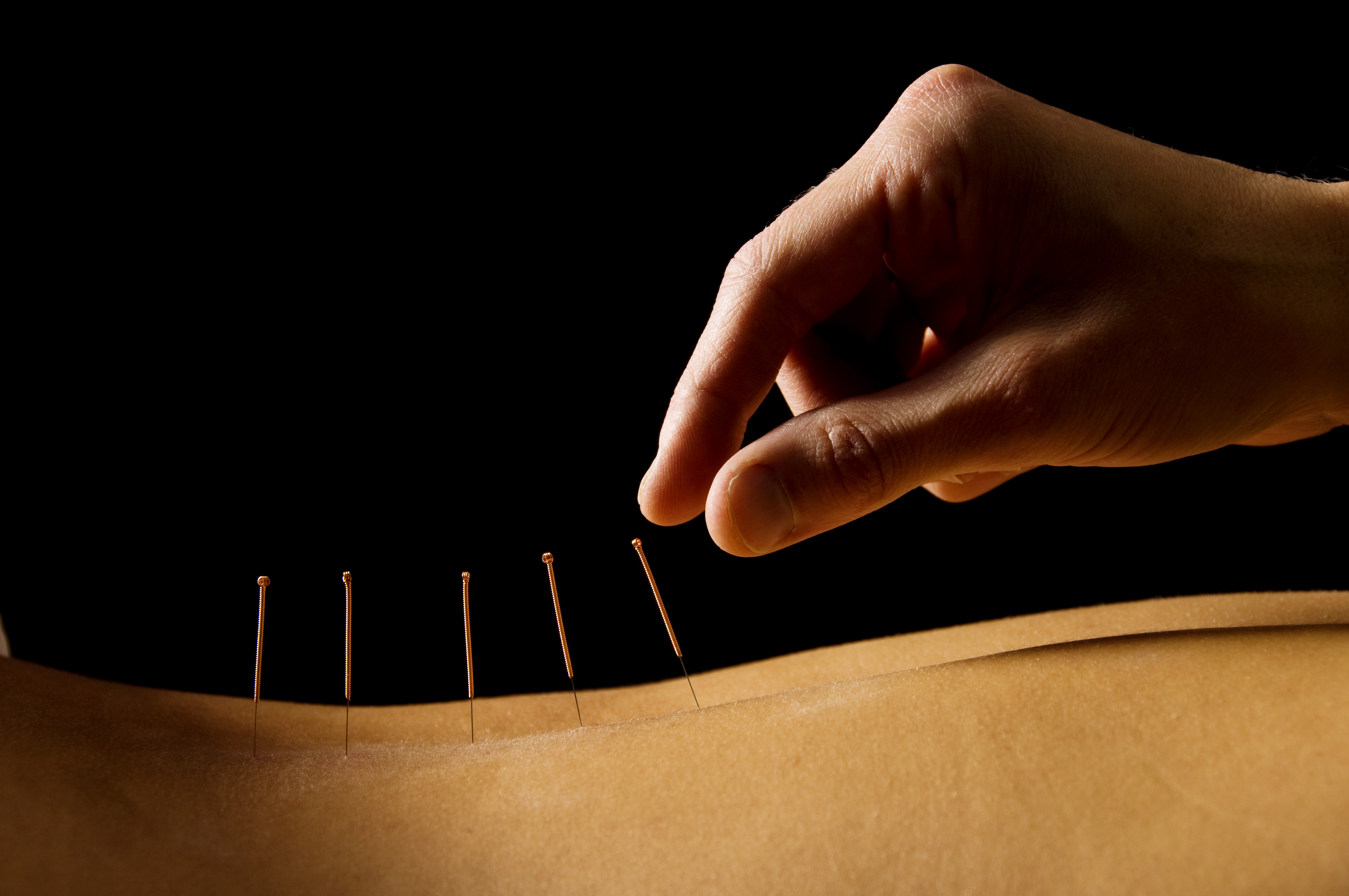 Acupuncture (2)
