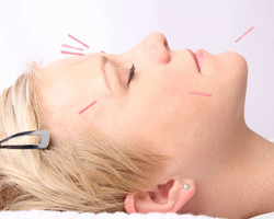 ant-aging-skin-treatment-with-acupuncture