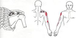 dry-needling-2 (1)