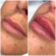 lips 3.jpeg