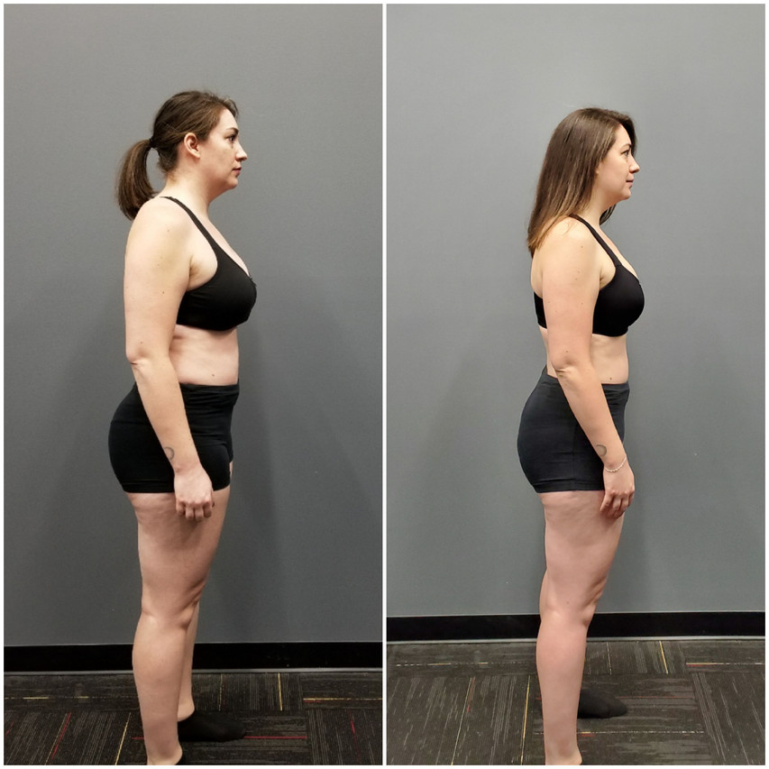 Holly Side Before and After