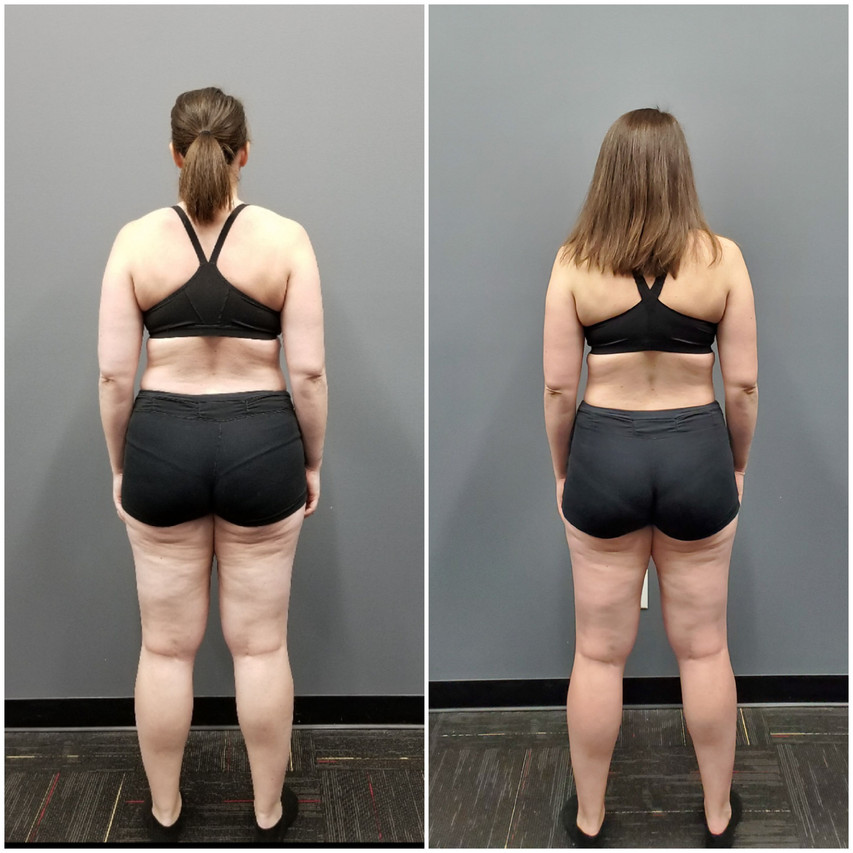 Holly Back Before and After
