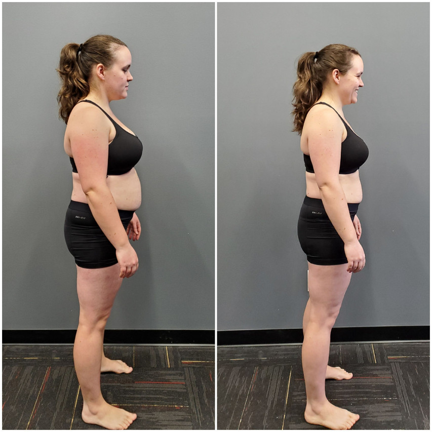 Katie Wignal Side before and after