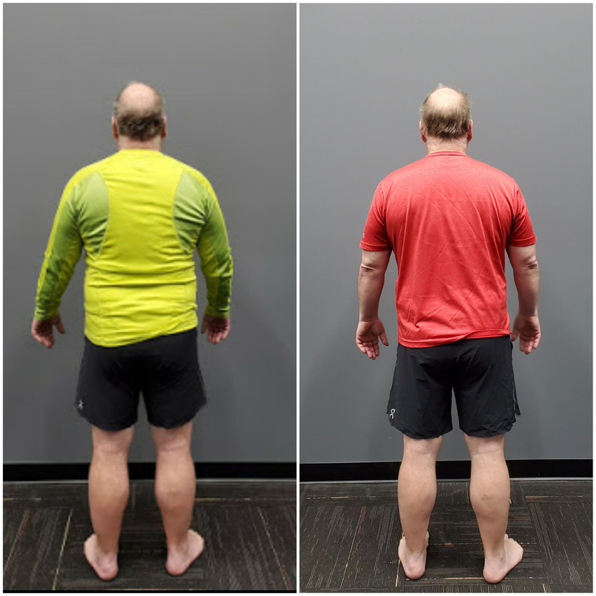 Mark Back before and after