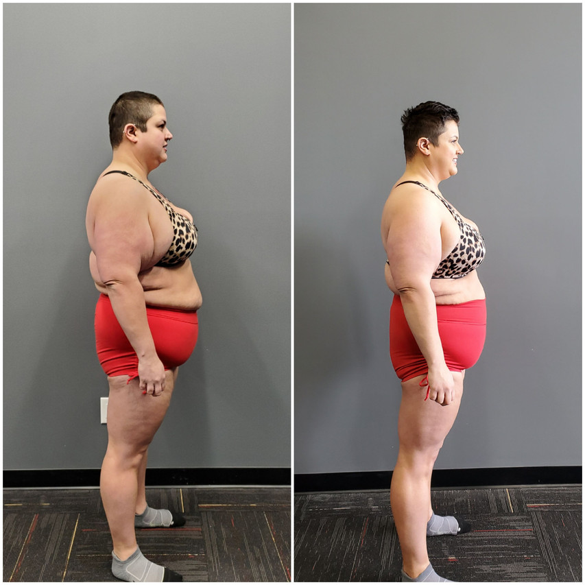 Katie Wilson Side before and after