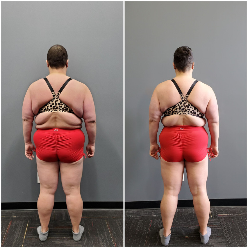 Katie Wilson Back before and after