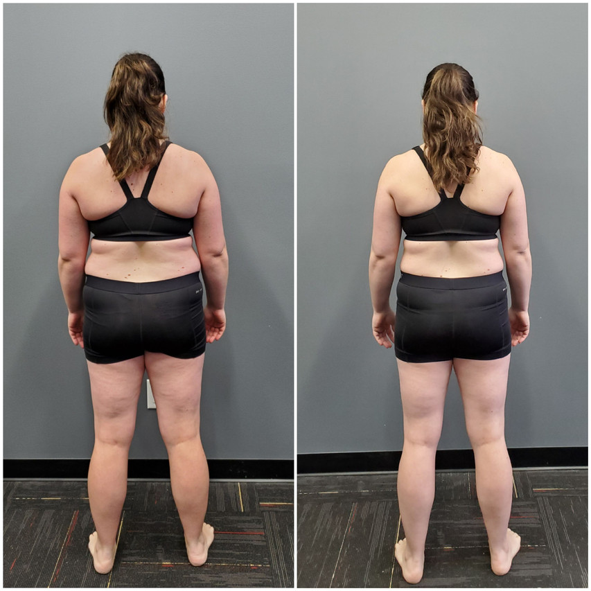 Katie Wignal Back before and after