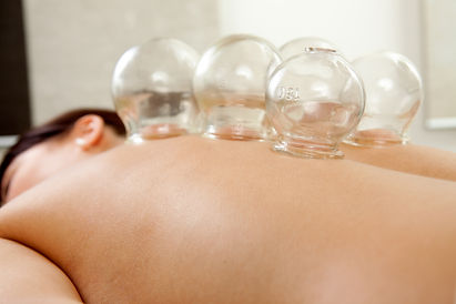 Photo of cupping on a patient