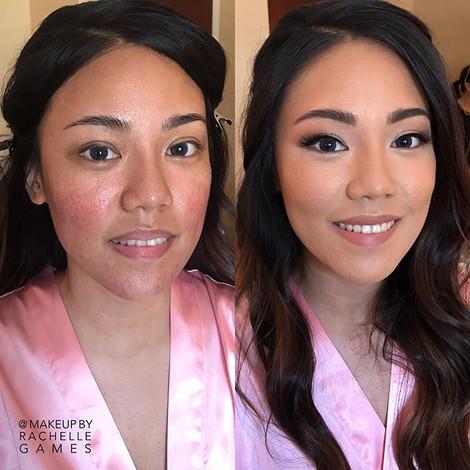 Rosacea Before & After ❣️ #MakeupbyRache