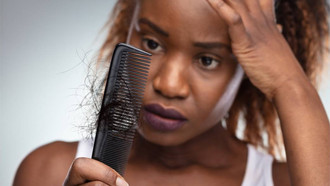 Is Hair Loss Affecting Your Lockdown Clients? Solutions You Can Offer