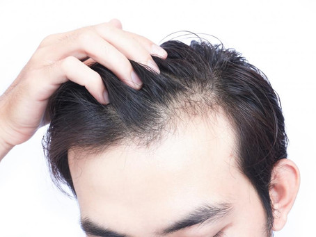 Losing Hair? Thinning Hair? Have No Idea Why?