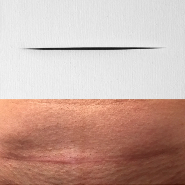 Top: Spatial Concept (rotated 90 degrees), Lucio Fontana. Bottom: My incision on my son's first birthday.