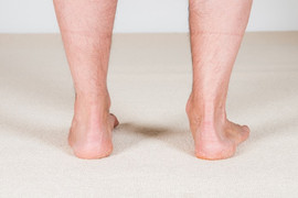 Overpronation-Blog-Photo-2.jpeg