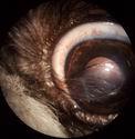 trichiasis_nasal.jpg