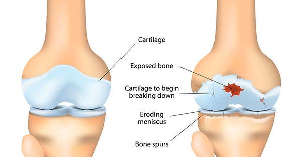 osteoartritis.jpg