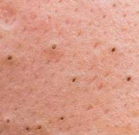 acne blackheads.jpg