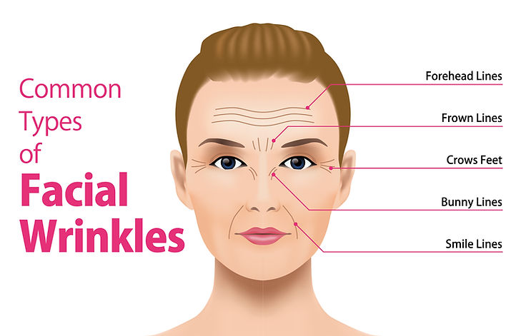 Woman Wrinkle Diagram.jpg