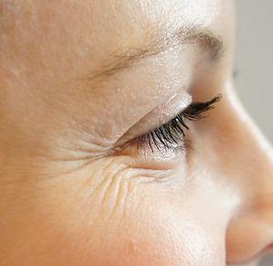 eye-wrinkles-fines-lines.jpg