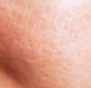Enlarged pores 1.jpg