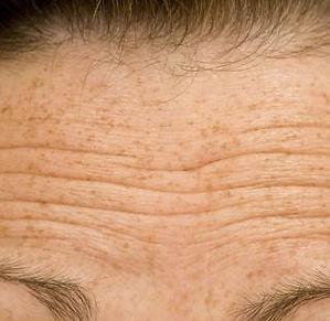 wrinkle 4.jpg