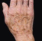 age spots 2.jpg