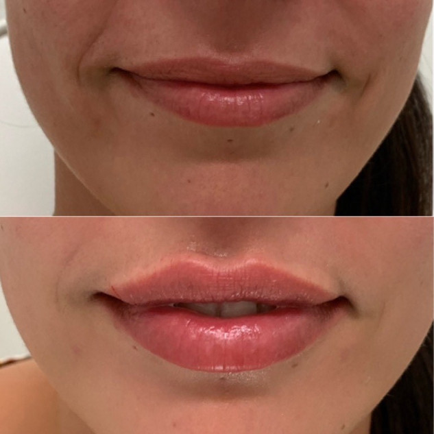 lip 1.jpg