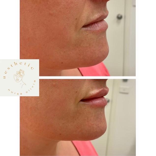 lips 6.jpg