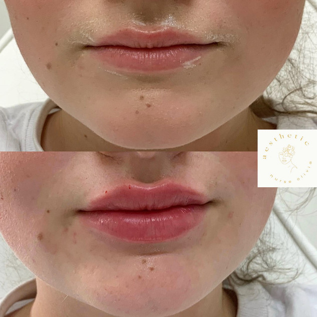 lips 9.jpg