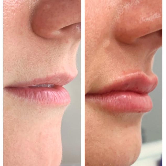 lips 8.jpg