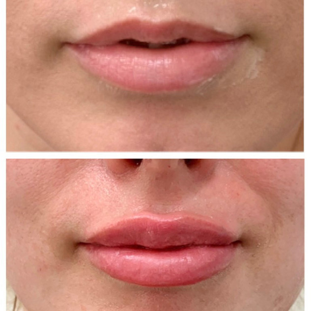 lips 7.jpg
