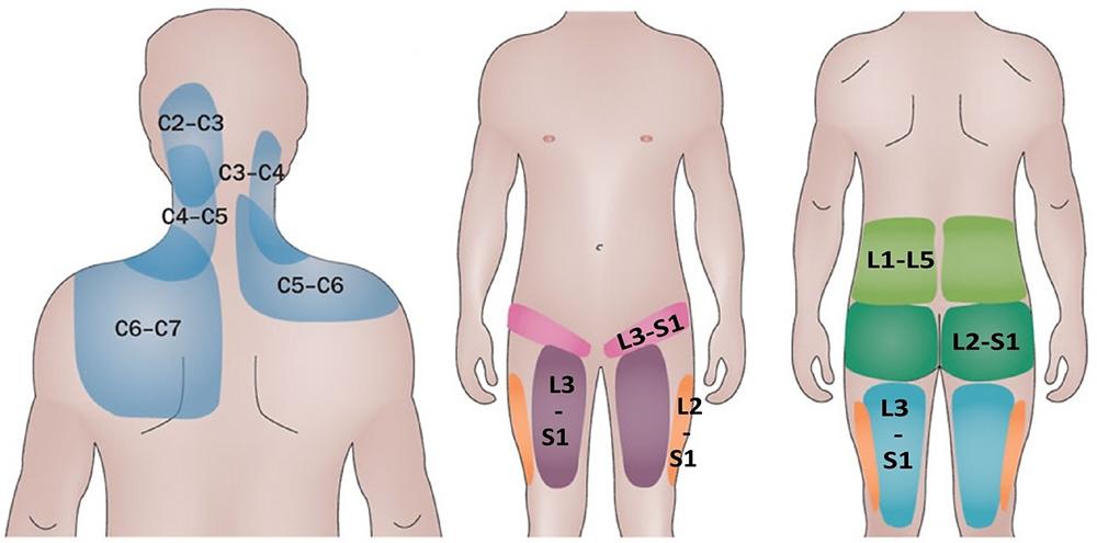 Distribuição das dores de acordo com as articulações afetadas