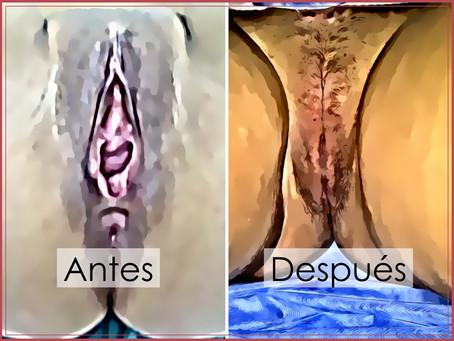 La Vaginoplastia y sus variantes