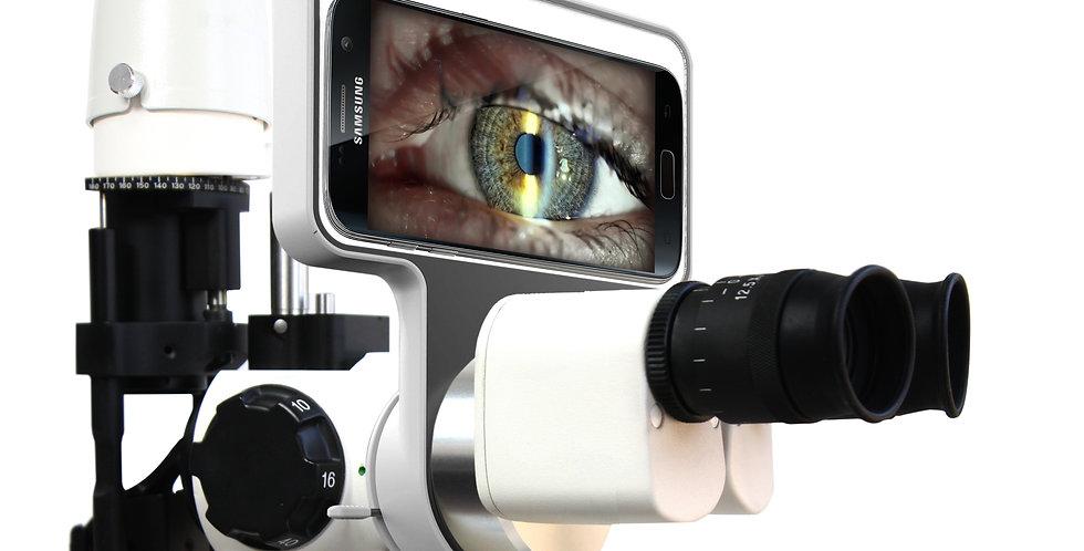 Slit lampDigitalimaging system
