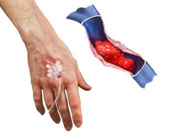 Eventos Adversos relacionados a catéter venoso periférico corto en el CAE Dr. Rafael Lucio. (Octubre